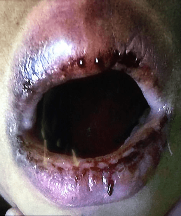 close-up of Adrian's lips, covered with angry sores14