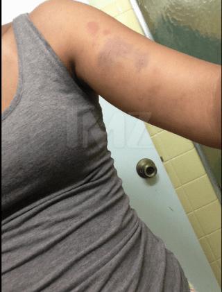 Bobbi Kristina's boyfriend Nick Gordon allegedly beat up new girlfriend2.png