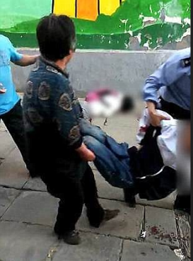 Victim of Zhao Zewei's knife attack removed .png