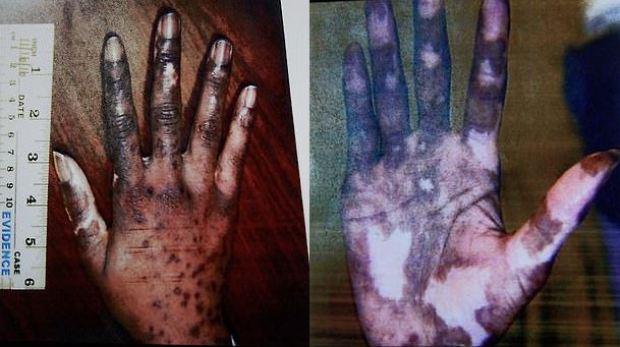 Geraldine Perkins shows her hands 2