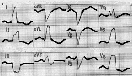 ekg esant 3 laipsnių hipertenzijai