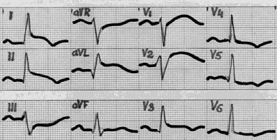 neuropatologas ir hipertenzija