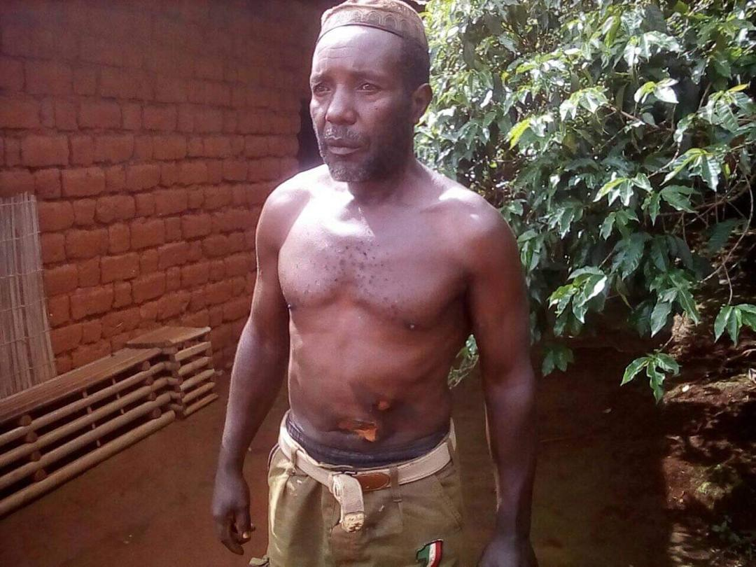 Ambazonia Terrorists use hot knife to burn human skin of their victims