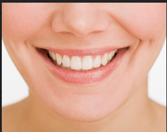 , 16 Top Teeth Whitening Questions Answered