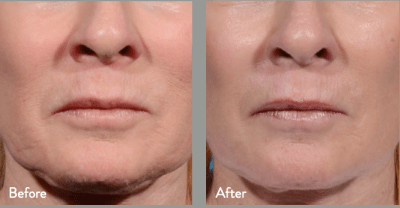 Before & After Lower Face