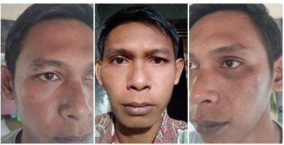 Korban salah tangkap, Muhammad Rafiie kader HMI dengan wajah lebam setelah menjalani visum. (foto: istimewa)