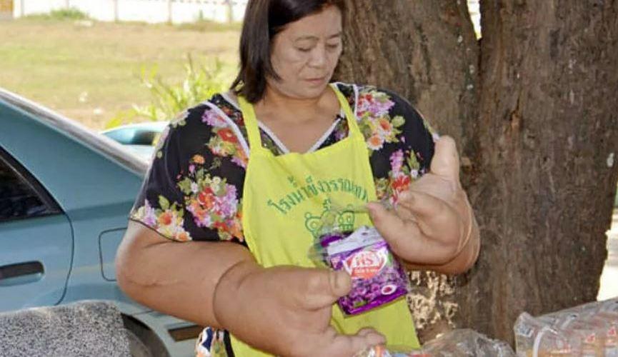 Женщина с самыми большими в мире руками.