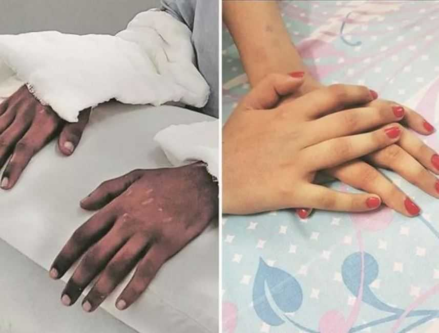 Спустя некоторое время после пересадки, руки значительно изменились.