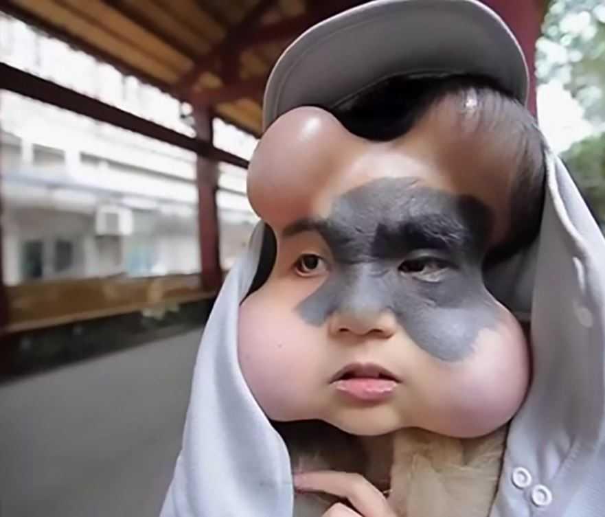 Китайской девушке вживили четыре имплатата в лицо, что бы избавить ее от родинки.
