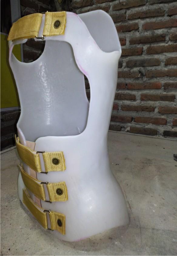 Kondisi Tulang Belakang Bagian Punggung Membengkok Ke Belakang Adalah : kondisi, tulang, belakang, bagian, punggung, membengkok, adalah, Tulang, Belakang, Bengkok, Korset, KORSET, TULANG, BELAKANG