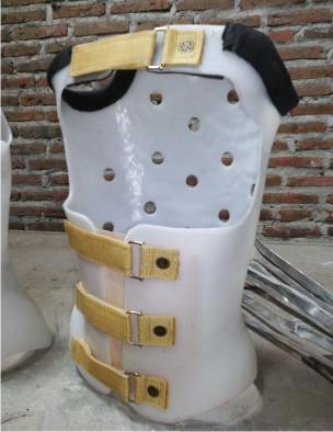 Tulang Belakang Bengkok Ke Samping : tulang, belakang, bengkok, samping, Meluruskan, Tulang, Belakang, Bengkok, KORSET, TULANG, BELAKANG