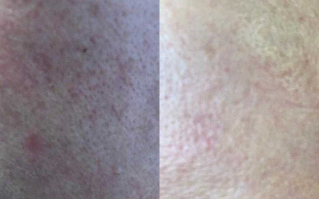 Nadelfreie Falten, Akne und Cellulite Behandlung