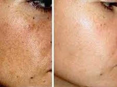 gesichtsbehandlung bei problemhaut riehen kosmetik studio basel