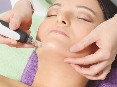 dermapen kosmetik studio basel