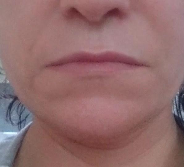 Microneedling Kosmetik Rottweil Aknebehandlung