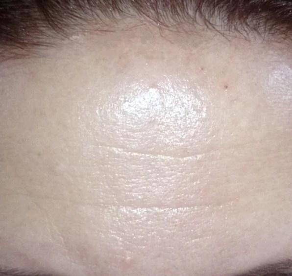 Kosmetikstudio Botox Balingen Rottweil Villingen-Schwenningen detox