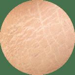 Entfernung Dehungsstreifen im Kosmetikstudio Villingen-Schwenningen