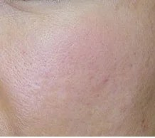 Akne entfernen Kosmetik Villingen-Schwenningen