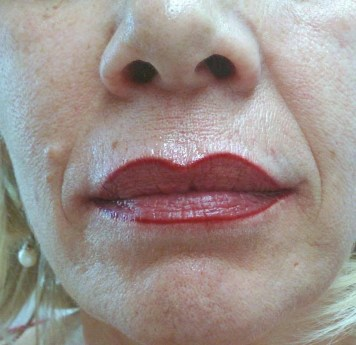 Lippenkontur nachher