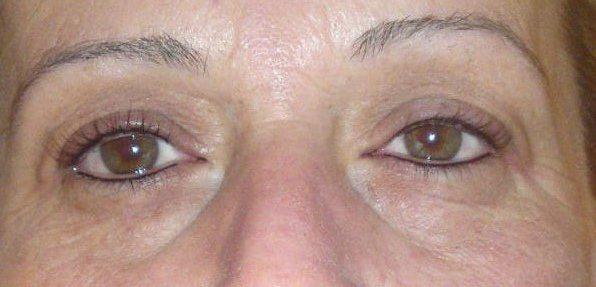 Augen dauerhaft geschminkt