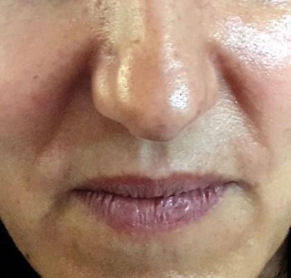 Lippenneugestaltung