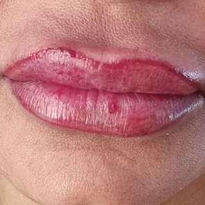 Lippenvergrößerung kräftiger Ton