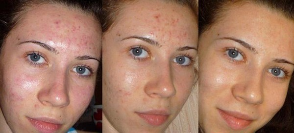 This procedure is performed to get rid of acne.