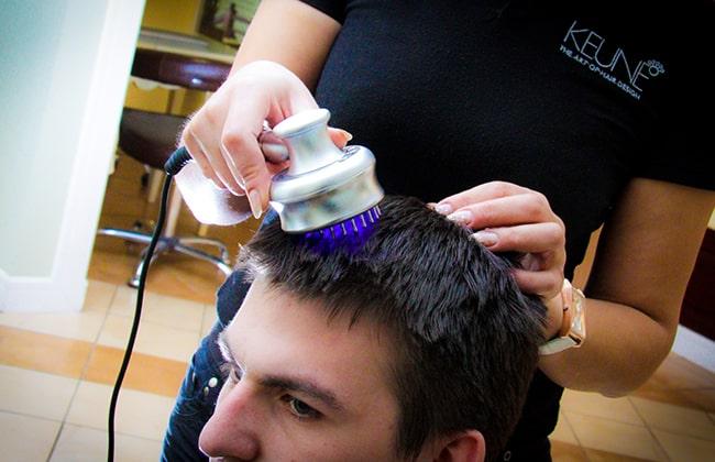 Kisilerde saç tökülmesi foto 2