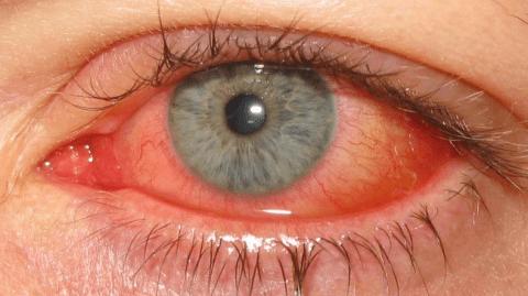 はやり目の症状~結膜炎と角膜炎を引き起こします
