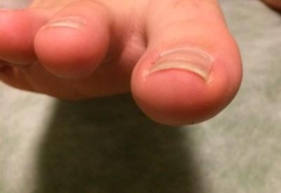子どもの薄い爪