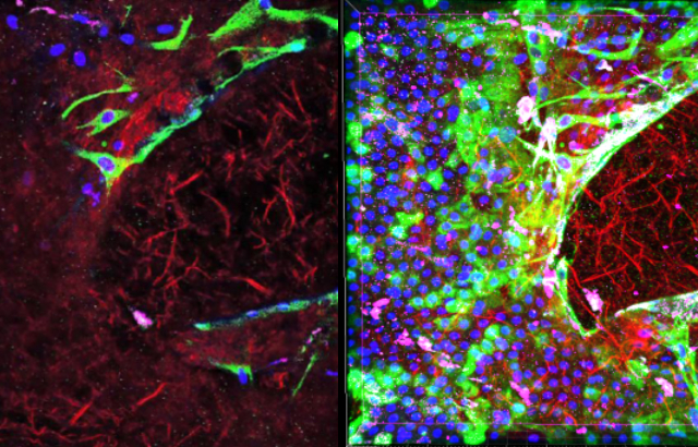 Researchers uncover new evidence that fetal membranes can repair themselves after injury