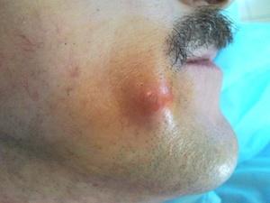 Атерома лечение без операции мазь