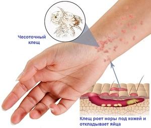 emberi rüh kezelés)