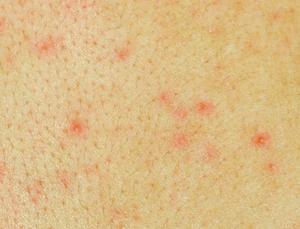 Как выглядит сыпь при ВИЧ фото: почему появляется сыпь при ВИЧ