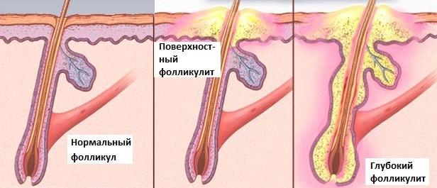 Гнойное воспаление волосяных луковиц на голове. Как правильно вылечить воспаление волосяной луковицы
