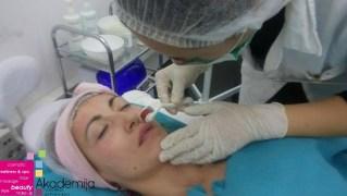 Kako tretirati kožu dermapenom