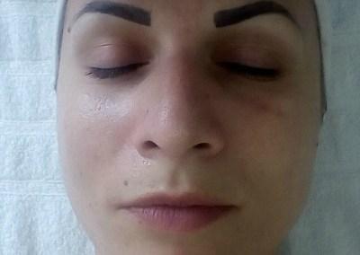 Mezoporacija i hidratacija lica