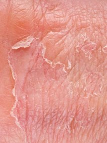 dry-flaky-skin
