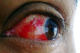VIRUSNI KONJUKTIVITIS – zarazna akutna infekcija kapaka