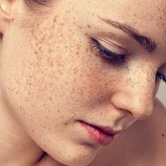 ŠTA SU HIPERPIGMENTACIJE NA KOŽI? – koji faktori utiču na promene na koži?