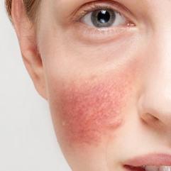 LEČENJE ROZACEE LASEROM – sprečite širenje crvenila i kapilara na licu
