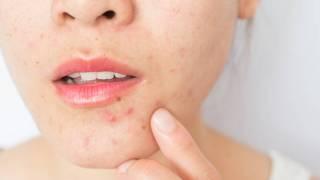 Koža nam u izolaciji izgleda gore nego ikad, zašto je to tako?