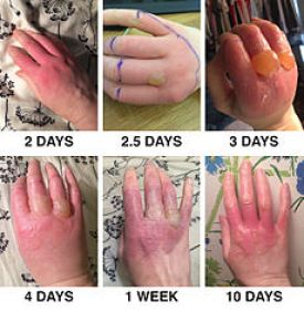 Phytophotodermatitis_from_exposure_to_lime_juice
