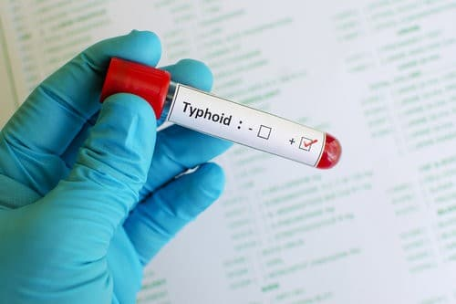 """""""There Is No Such Thing As Malaria-Typhoid, Avoid Combining Malaria And Typhoid Drugs"""" – Doctor"""