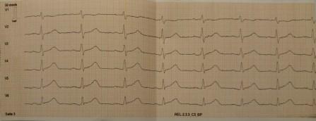 EKG V1 - V6