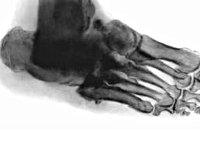 Рентген стоп с нагрузкой (выявление плоскостопия)