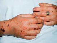 Гинекологический сепсис симптомы. Септический шок в акушерстве и гинекологии