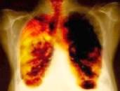 Lungen Lungenkrebs