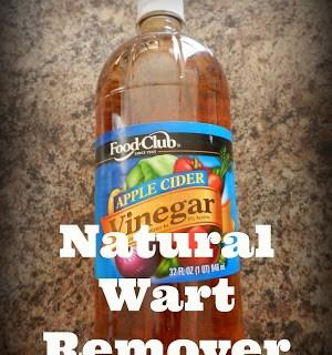Natural Wart Remover!