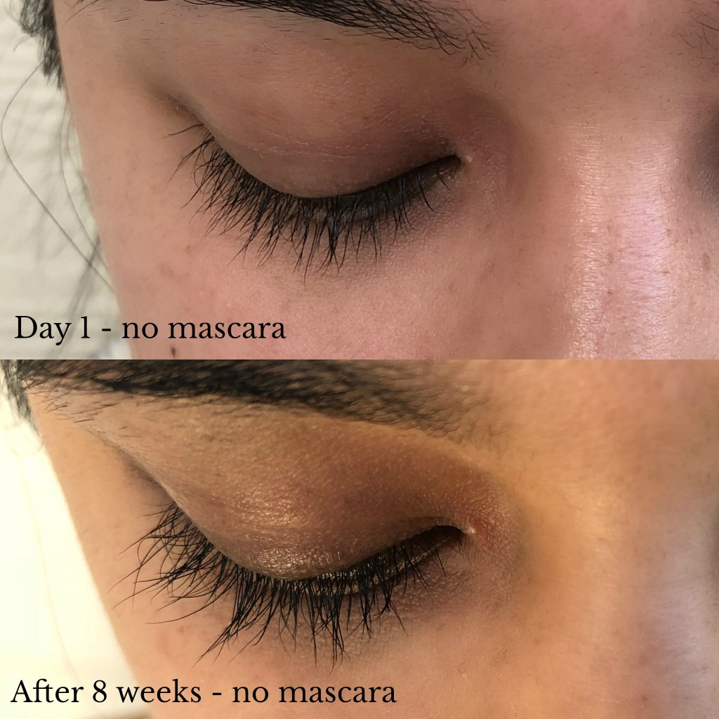 fb088445a19 Side note: I do believe that you have to continue using the serum even  after the recommended time (8-12 weeks) or your lashes will eventually go  back to ...